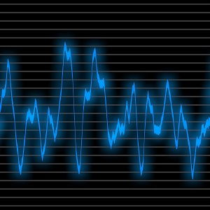 Rapporto segnale rumore per audio e hi fi